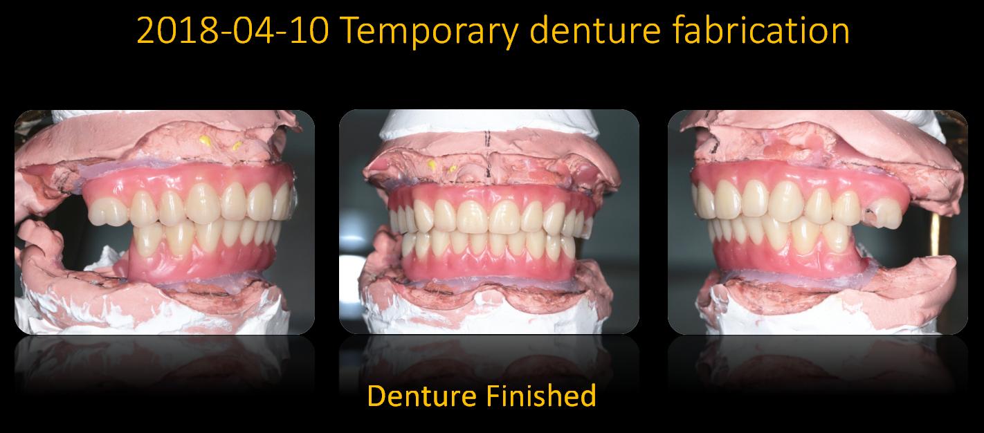 Temporary_denture_fabrication