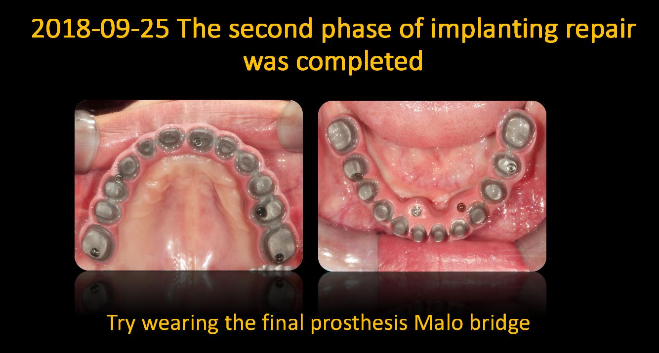 Try_wearing_the_final_prosthesis_Malo_bridge