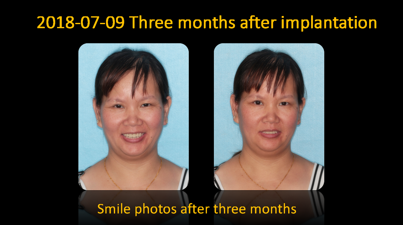 smile_photos_after_3_months