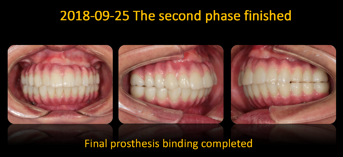 Final_prosthesis_binding_completed
