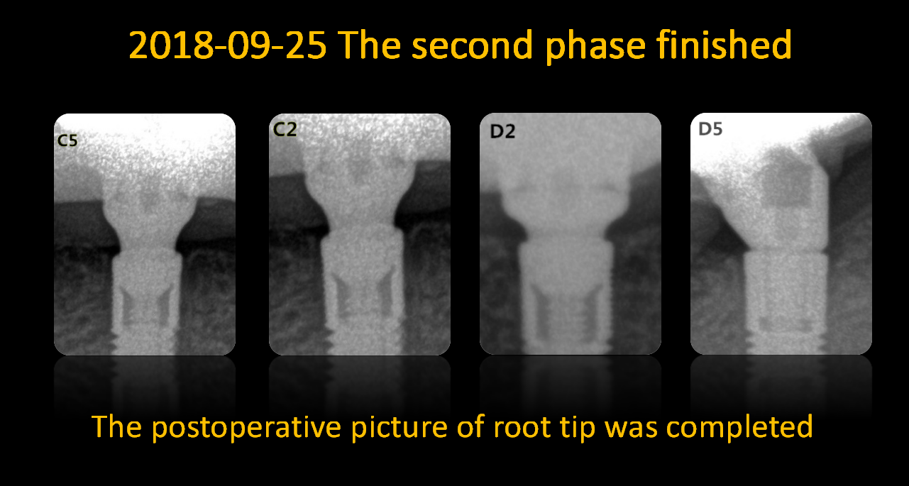 The postoperative picture of root tip was completed_2