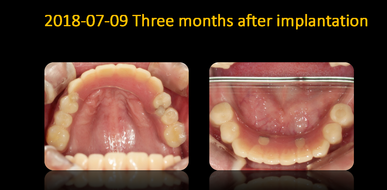 Photos_in_mouth_after_3_months_2