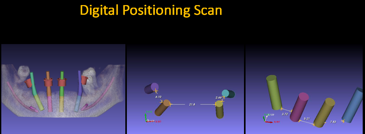 Digital_Positioning_Scan_3