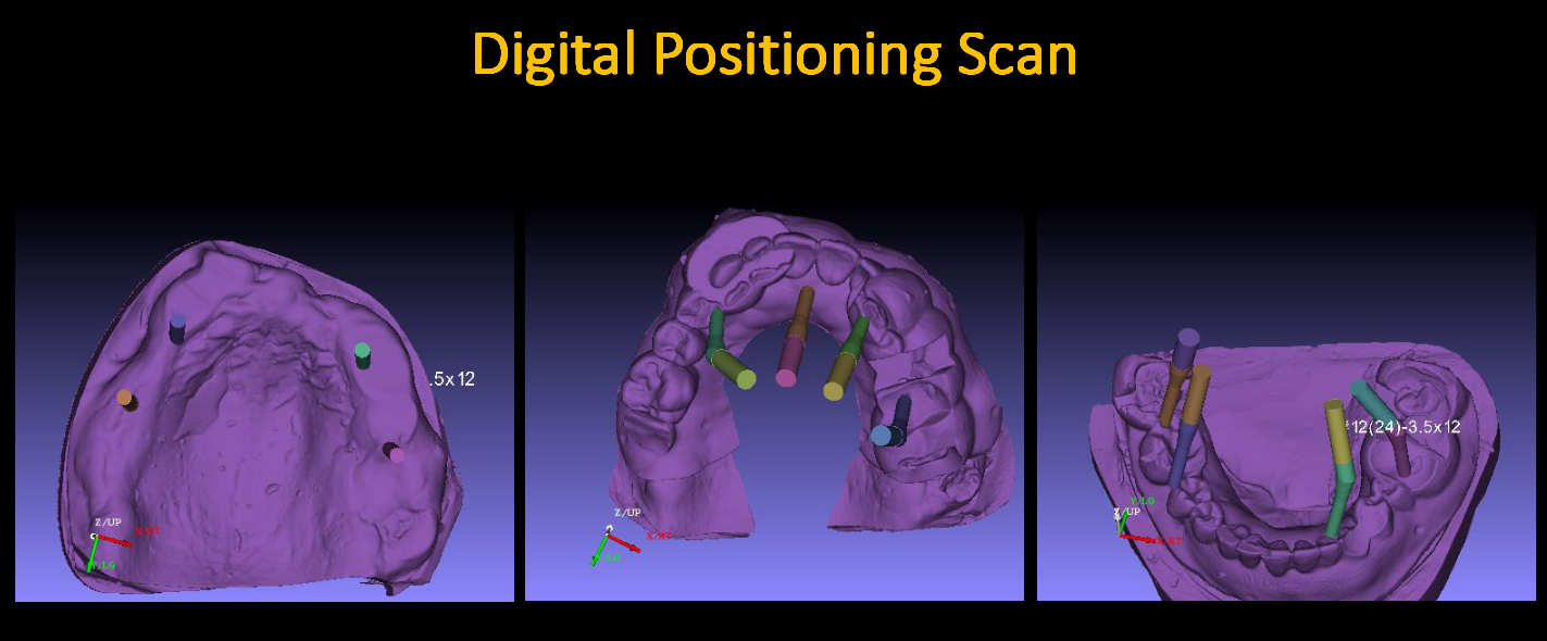 Digital_Positioning_Scan_2