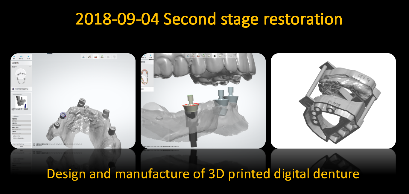 Design_and_manufacture_of_3D_printed_digital_denture_1