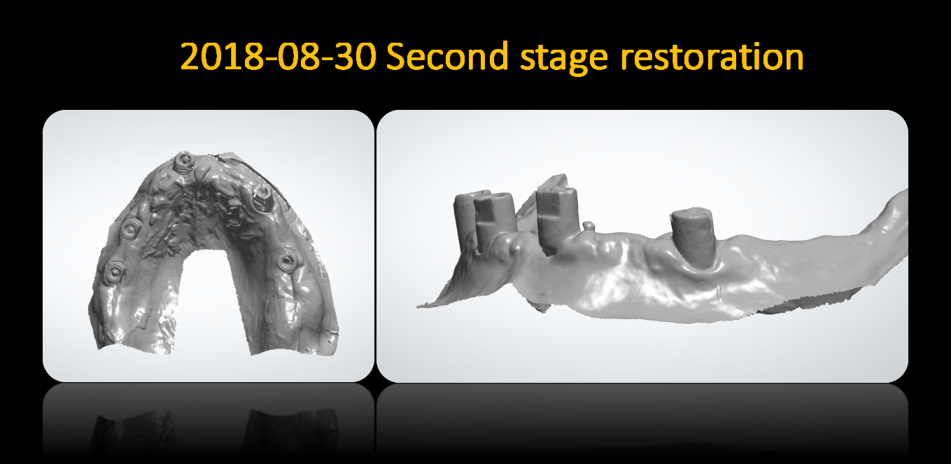 Second_stage_restoration