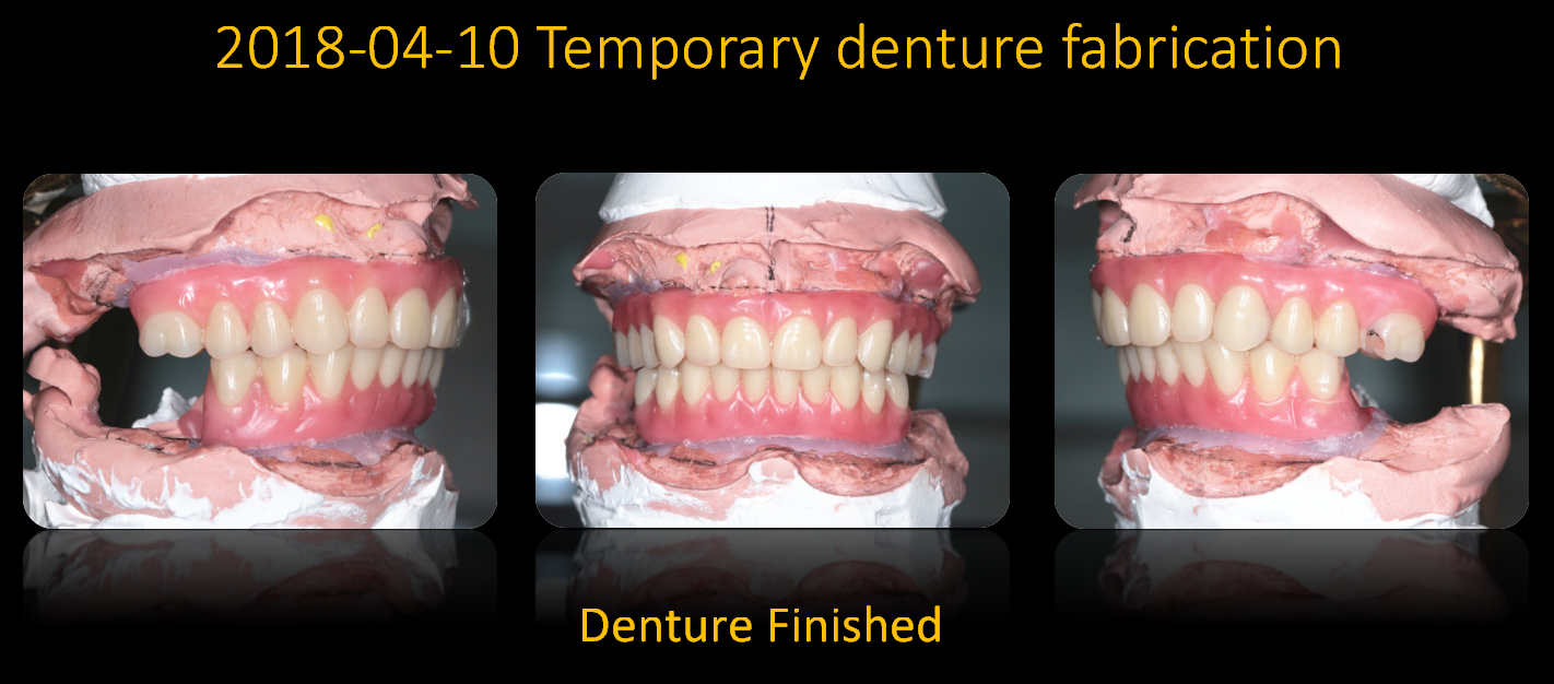 Temporary_denture_fabrication