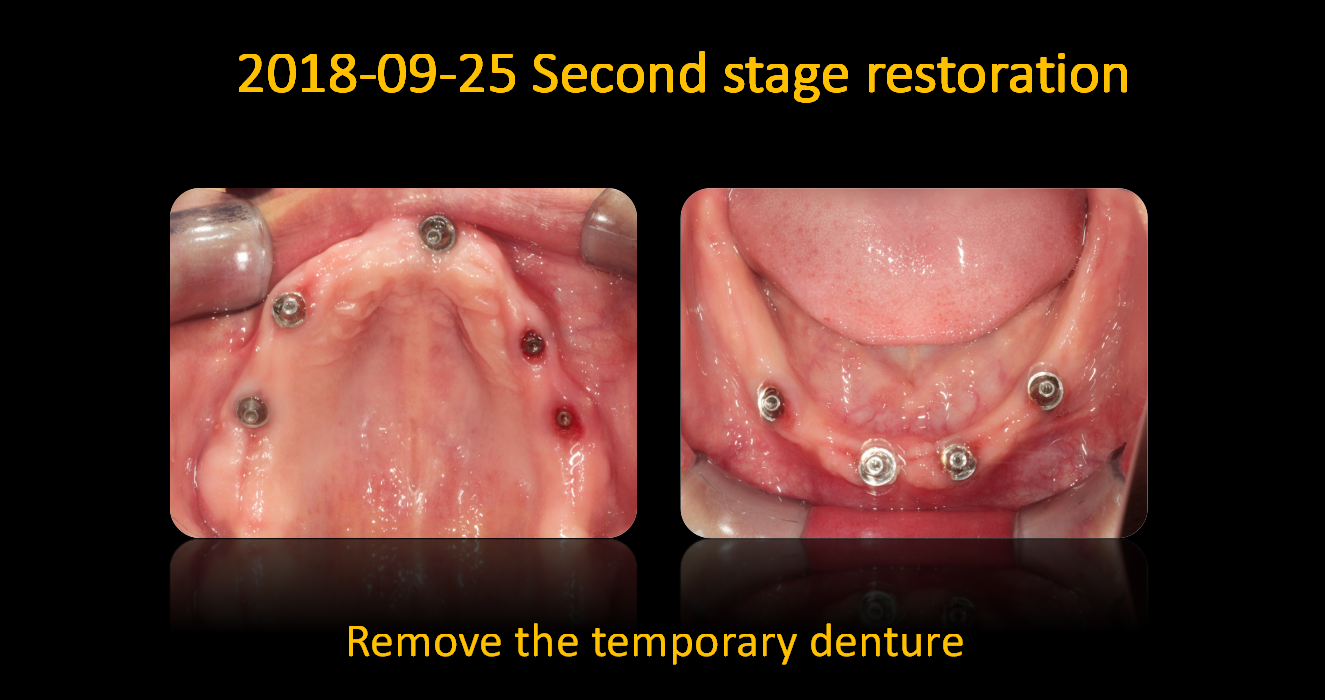 Remove_the_temporary_denture