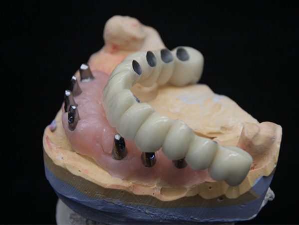 More than 60% of the global dentures are produced in China. After the decline in gross profit, will implants be the next profitable one?