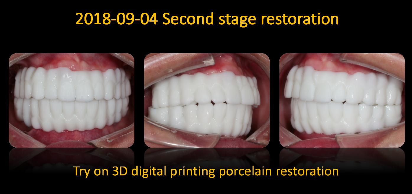 Try_on_3D_digital_printing_porcelain_restoration